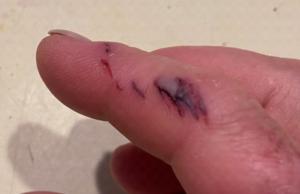 photo of iguana bite on finger